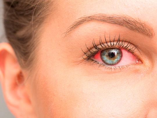 alergia-ocular