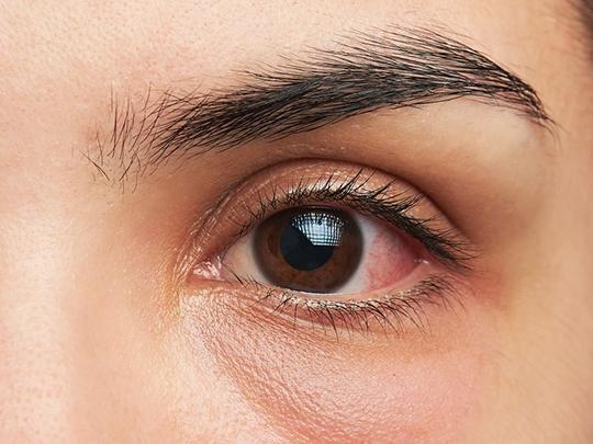 ceratite_dra_melissa_krindges_oftalmologista