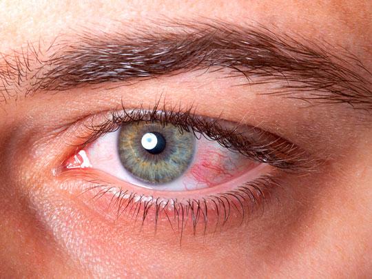 conjuntivite_dra_melissa_krindges_oftalmologista