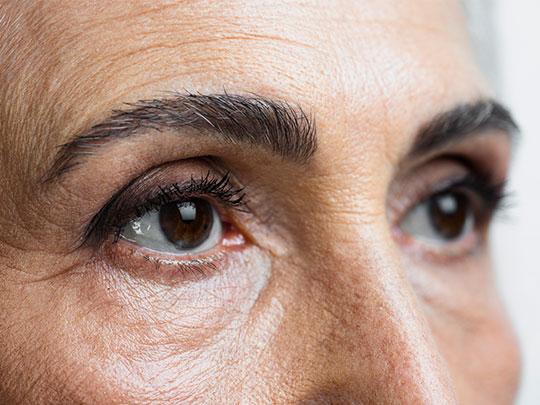 tumores-oculares