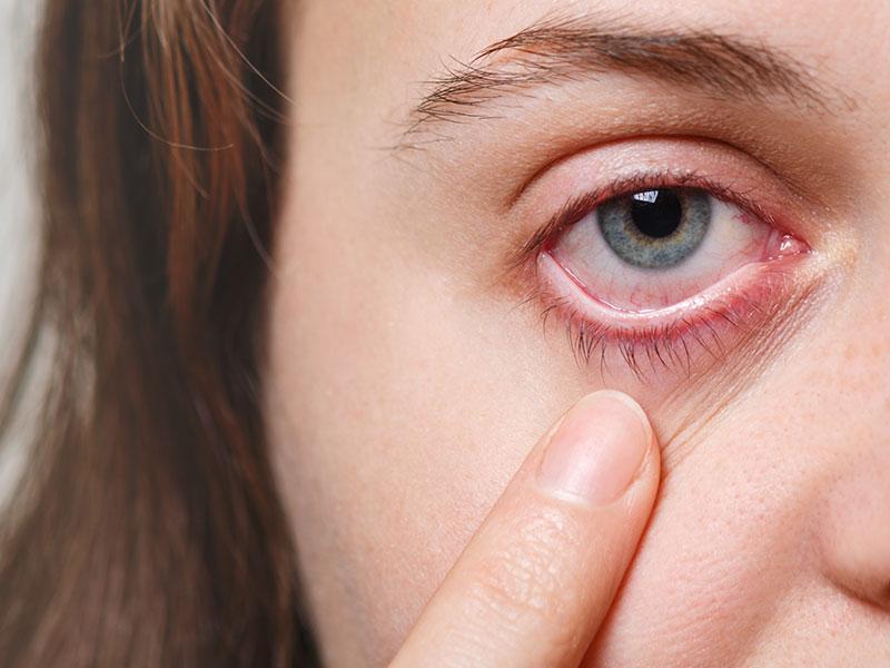 a imagem mostra metade do rosto de uma mulher branca, de cabelos castanhos claros, que aponta com o dedo indicador para seu olho direito. O olho é verde e apresenta sinais de irritação, com veias aparentes e pálpebra avermelhada.